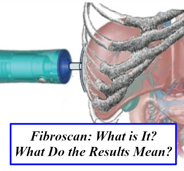 Fibroscan: What is it? What Do the Results Mean?
